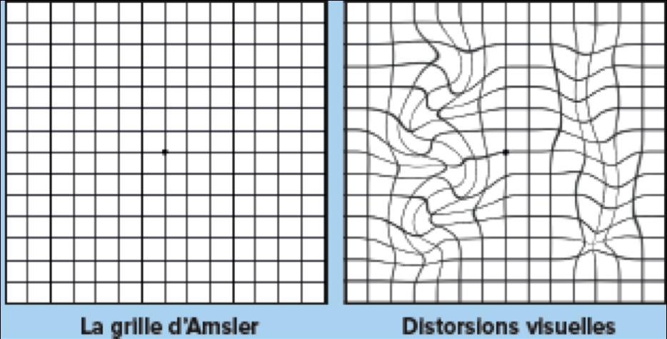 amsler deforme